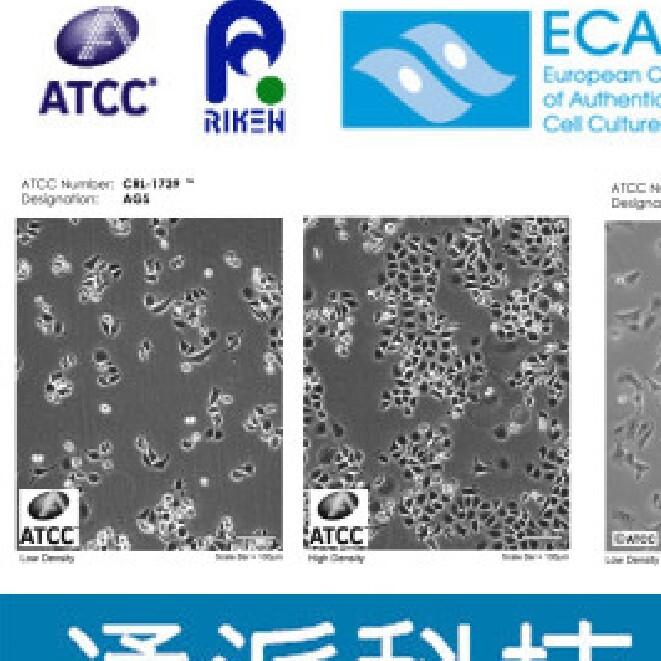 Reh細胞(Reh培養基、Reh傳代細胞)